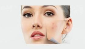 comment-venir-a-bout-de-son-acne-tardive_1959739